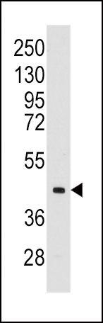 Aldolase C Antibody (PA5-12317) in Western Blot