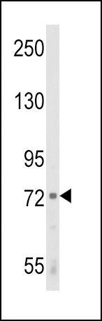 ALOX12 Antibody (PA5-26020) in Western Blot