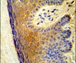 ALOX15B Antibody (PA5-26208) in Immunohistochemistry