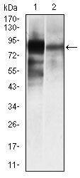 ALPL Antibody (MA5-17030) in Western Blot