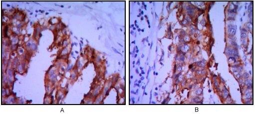 Placental Alkaline Phosphatase Antibody (MA5-15652)