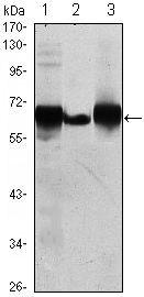 Placental Alkaline Phosphatase Antibody (MA5-15652) in Western Blot