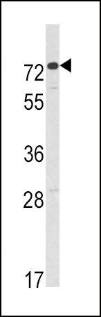 AMHR2 Antibody (PA5-13902)