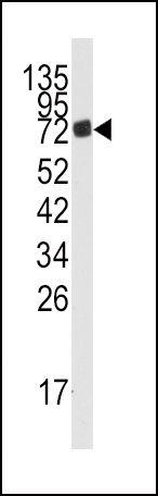 AMPD3 Antibody (PA5-15032)