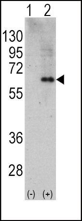 AMPK alpha-2 Antibody (PA5-14306) in Western Blot