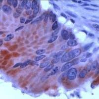 APC Antibody (PA1-37093) in Immunohistochemistry