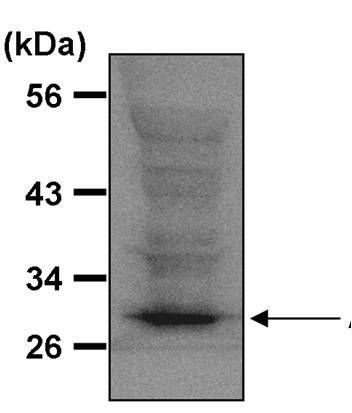 ATG5 Antibody (PA1-18285) in Western Blot