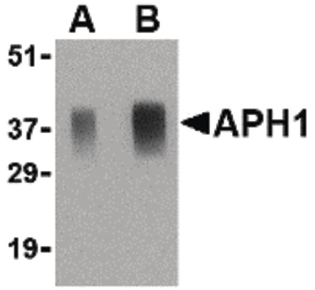 APH1 Antibody (PA5-20318) in Western Blot