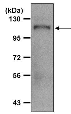 beta Amyloid Antibody (PA5-17829) in Immunoprecipitation
