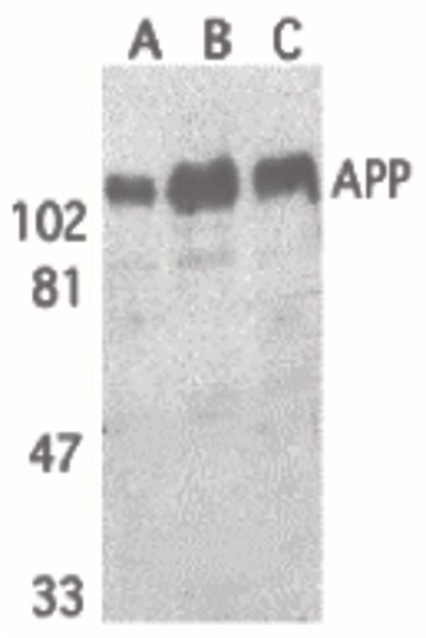 beta Amyloid Antibody (PA5-19922) in Western Blot