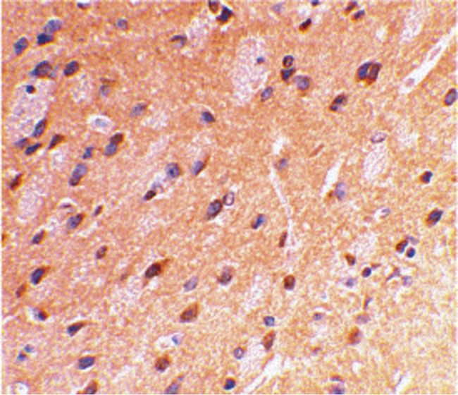 beta Amyloid Antibody (PA5-19923) in Immunohistochemistry
