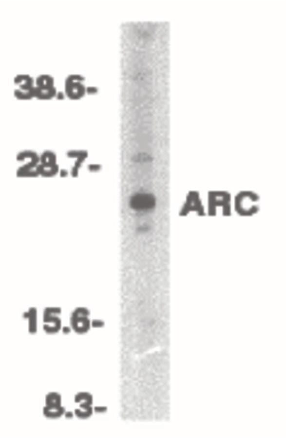 ARC Antibody (PA5-19934) in Western Blot