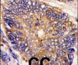 ARH Antibody (PA5-15241) in Immunohistochemistry