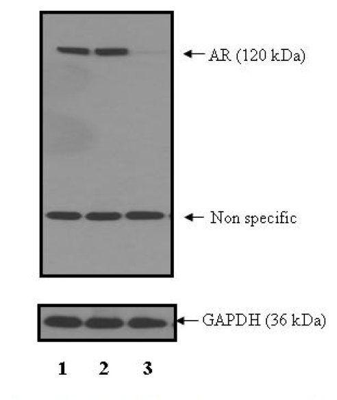 Androgen Receptor Antibody (PA5-17771)