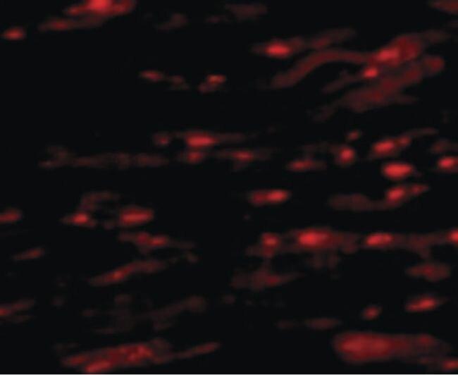 ASAH1 Antibody (PA5-20574)
