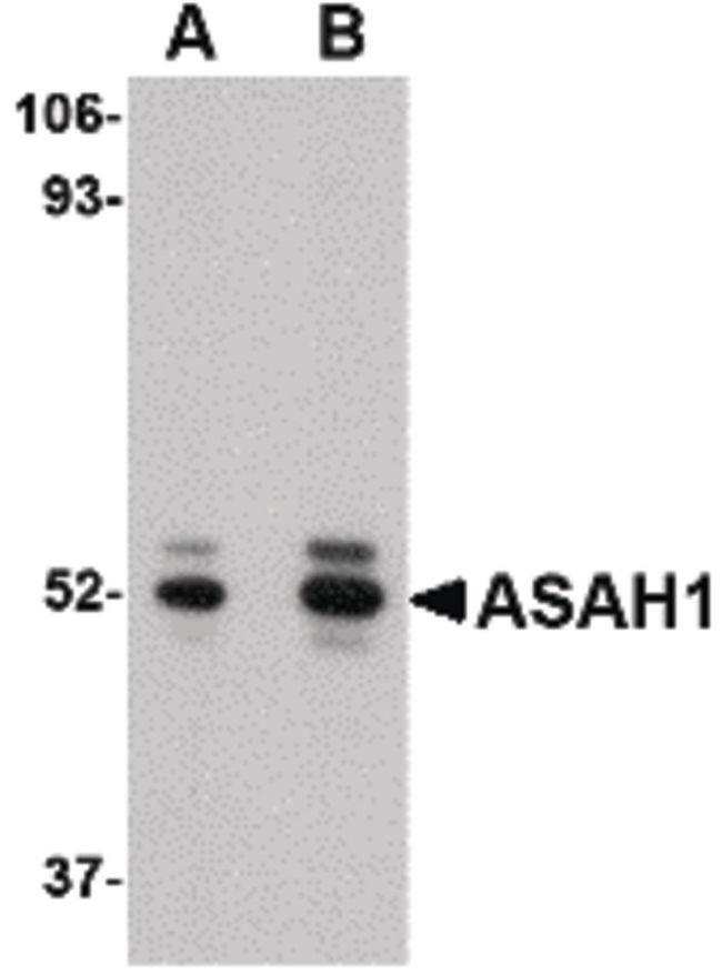 ASAH1 Antibody (PA5-20574) in Western Blot