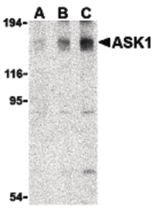 ASK1 Antibody (PA5-20200) in Western Blot
