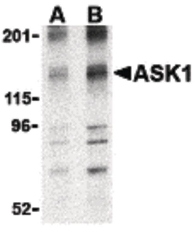 ASK1 Antibody (PA5-20201)