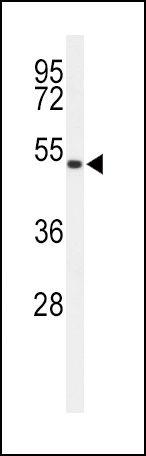 ASMT Antibody (PA5-24721) in Western Blot