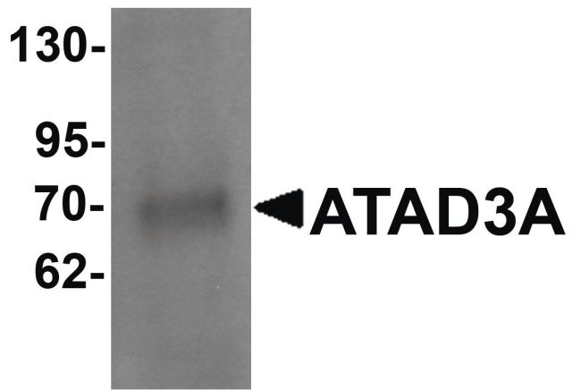 ATAD3A Antibody (PA5-21159) in Western Blot