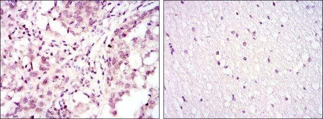 ATF2 Antibody (MA5-15807)