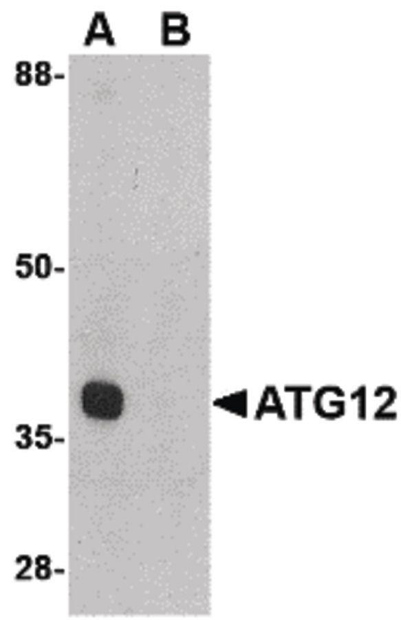ATG12 Antibody (PA5-20464) in Western Blot