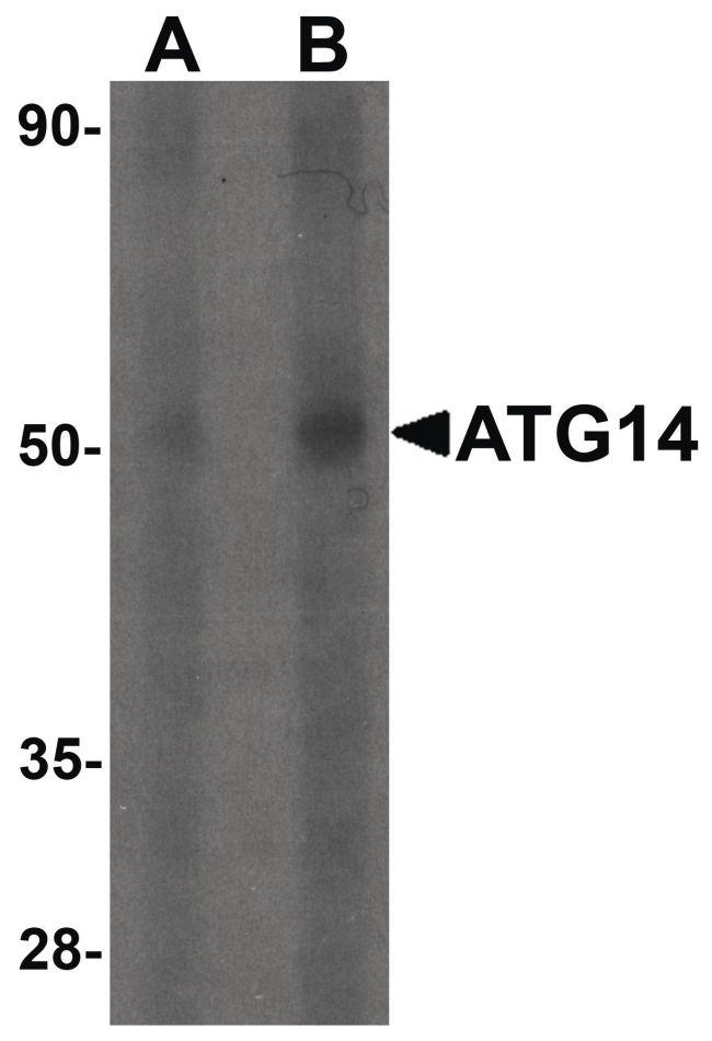 ATG14 Antibody (PA5-34453) in Western Blot