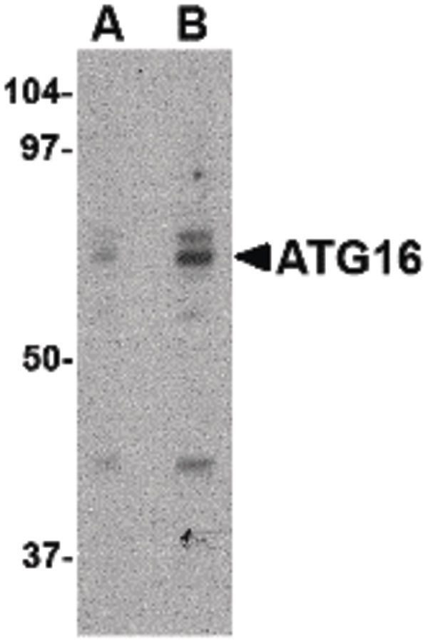 ATG16L1 Antibody (PA5-20489) in Western Blot