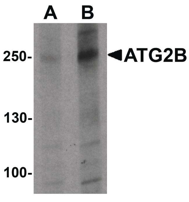 ATG2B Antibody (PA5-34428) in Western Blot