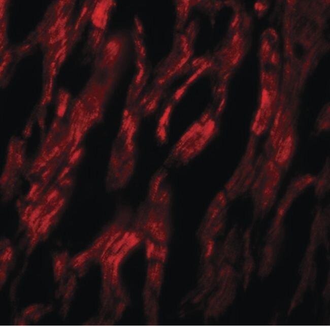 ATG9A Antibody (PA5-21043) in Immunofluorescence