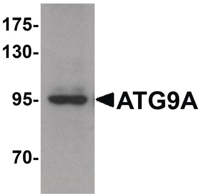 ATG9A Antibody (PA5-21043) in Western Blot