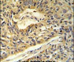 ATP5A1 Antibody (PA5-26778)