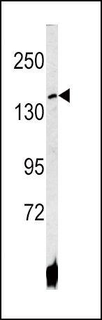 ATP7B Antibody (PA5-13429) in Western Blot