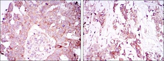 Ataxin 1 Antibody (MA5-15735) in Immunohistochemistry