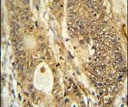 AVIL Antibody (PA5-24690) in Immunohistochemistry
