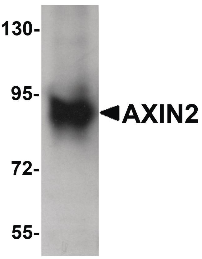 AXIN2 Antibody (PA5-21093) in Western Blot