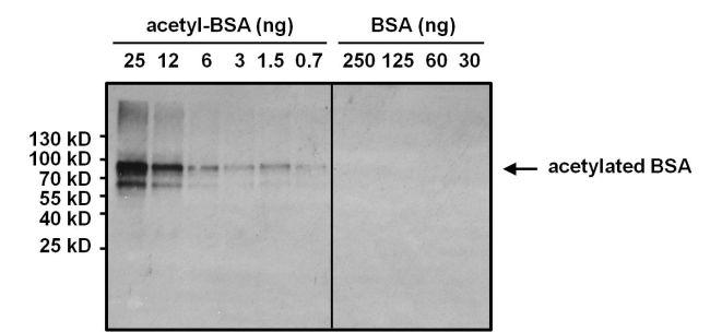 Acetyl Lysine Antibody (MA1-2021) in Western Blot