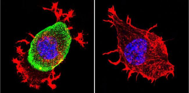 Acetylcholinesterase Antibody (MA3-042) in Immunofluorescence