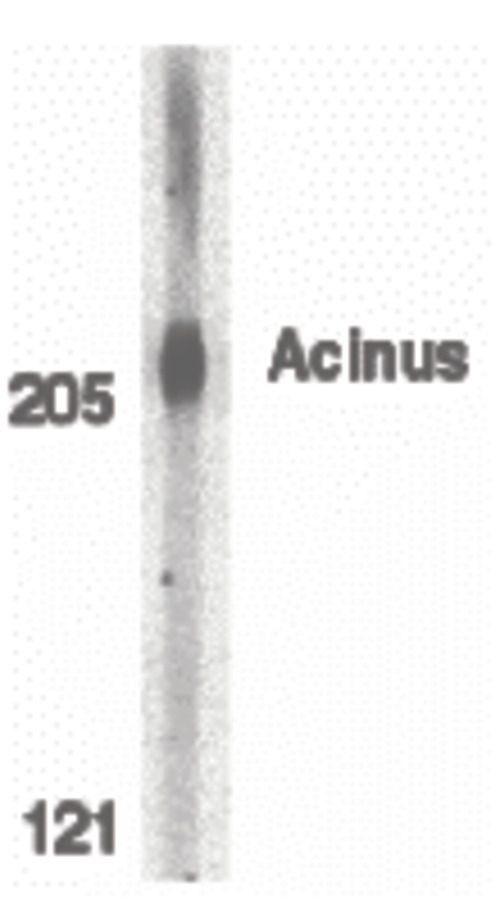 Acinus Antibody (PA5-19939) in Western Blot