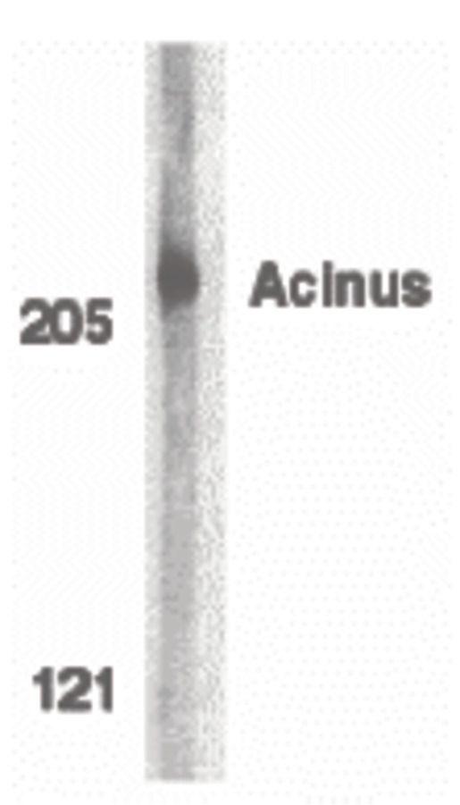 Acinus Antibody (PA5-19948)