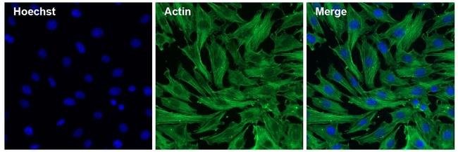 Actin Antibody (MA1-744) in Immunofluorescence