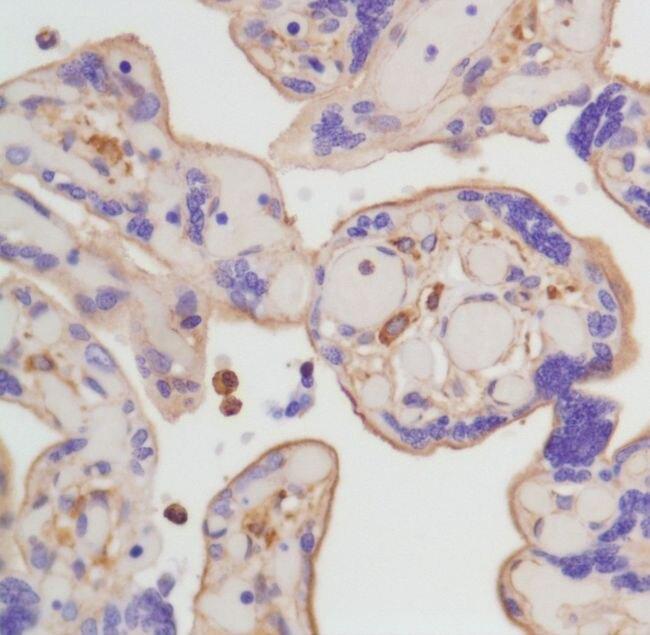 beta Actin Antibody (MA5-16410)