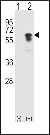 ACVR1 Antibody (PA5-14920) in Western Blot