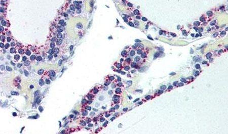 ADORA2B Antibody (PA5-33322) in Immunohistochemistry (Paraffin)