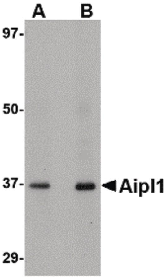 AIPL1 Antibody (PA5-20623) in Western Blot