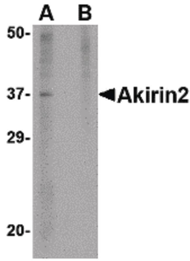 Akirin2 Antibody (PA5-20607) in Western Blot