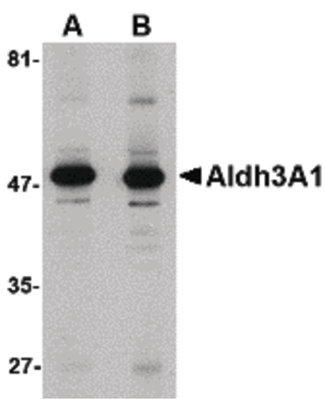 ALDH3A1 Antibody (PA5-20602) in Western Blot