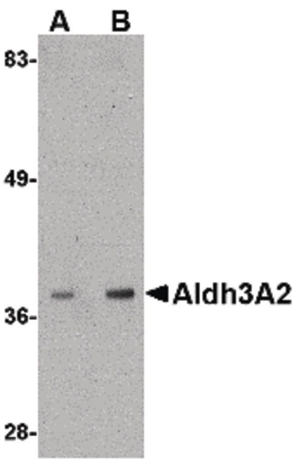 ALDH3A2 Antibody (PA5-20603) in Western Blot