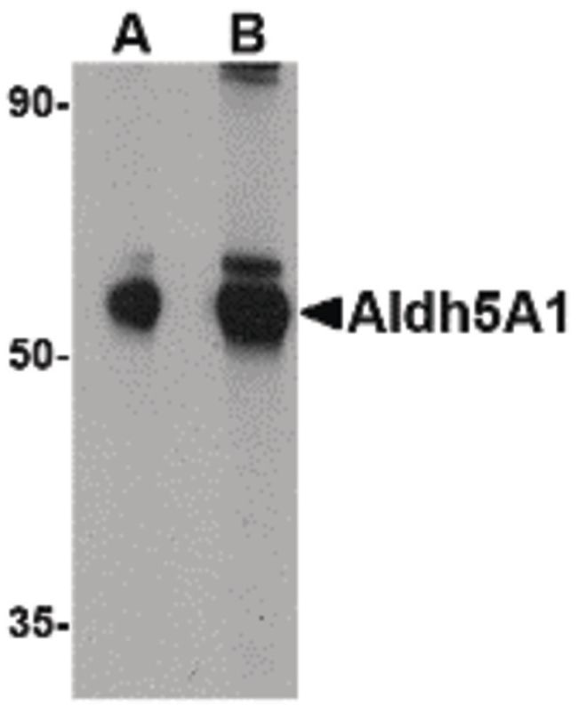 ALDH5A1 Antibody (PA5-20609) in Western Blot