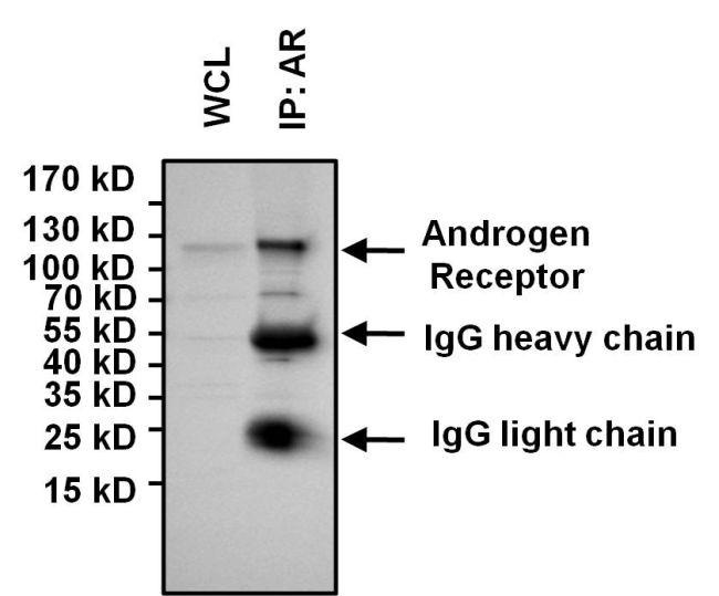 Androgen Receptor Antibody (PA5-16750) in Immunoprecipitation
